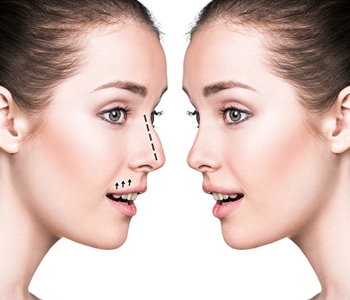 Edmund Kwan, M.D. How long will the results last after my Asian rhinoplasty?