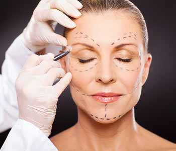 Edmund Kwan, M.D. What is involved in a facelift in the Manhattan area?