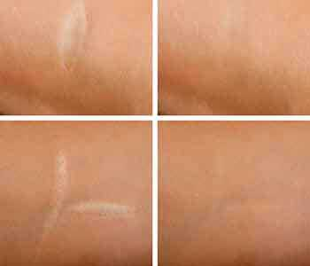 Edmund Kwan, M.D. Treatments for scars in the New York City area