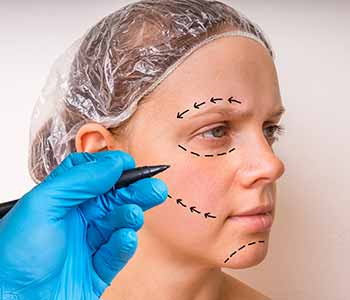 Edmund Kwan, M.D. When can I go back to work following brow lift surgery?