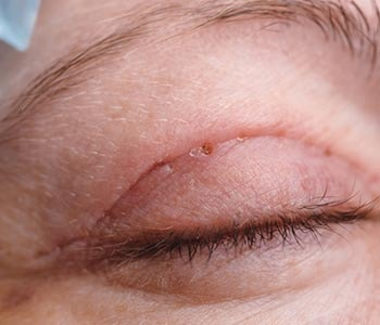 Edmund Kwan, M.D. What is the recommended age for an eyelid fold procedure?