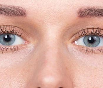 Edmund Kwan, M.D. What is the recovery time following eyelid fold surgery?