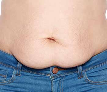 Edmund Kwan, M.D. New Jersey area patients ask about the belly tuck surgery