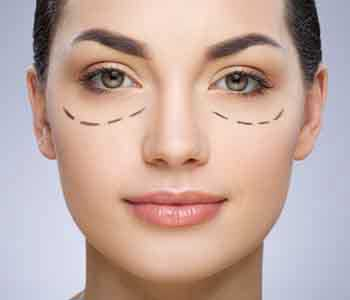 Edmund Kwan, M.D. Are there any risks involved in blepharoplasty?