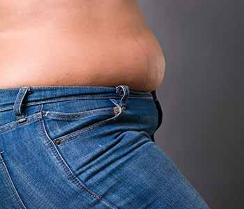 Edmund Kwan, M.D. What is liposuction?