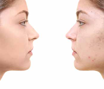 Before & After image for Scar Removal