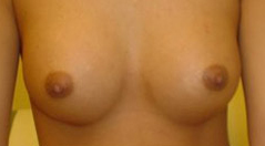 Breast Implant Before and After Photos NYC - After Image 6
