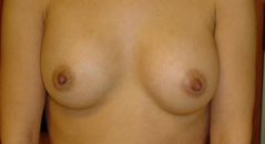 Breast Implant Before and After Photos NYC - After Image 8