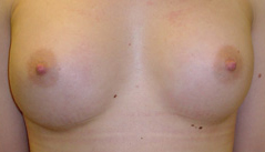 Dr. Edmund Kwan, Edmund Kwan M.D - Breast Implant After Image 2
