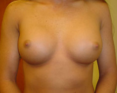 Dr. Edmund Kwan, Edmund Kwan M.D - Breast Implant After Image 3