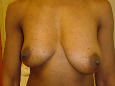 Breast Lift Before and After Photos NY - Before Image 6