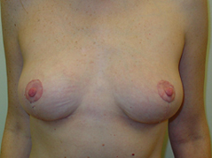 Breast Lift Before and After Photos NY - After Image 4