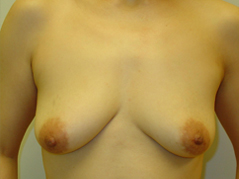 Dr. Edmund Kwan, Edmund Kwan M.D - Breast Implant Before Image 5