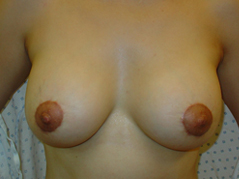 Breast Lift Before and After Photos NY - After Image 5
