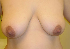 Breast Lift Before and After Photos NY - Before Image 1