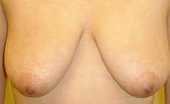 Breast Lift Before and After Photos NY - Before Image 2
