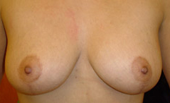 Breast Lift Before and After Photos NY - After Image 2