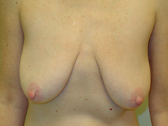 Breast Lift Before and After Photos NY - Before Image 4