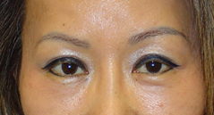 Brow Lift Before and After Photos NYC - After Image 4