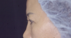 Brow Lift Before and After Photos NYC - Before Image 7