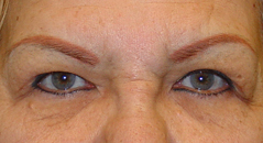 Brow Lift Before and After Photos NYC - Before Image 3