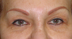Brow Lift Before and After Photos NYC - After Image 3