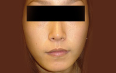 Jawbone/Cheekbone Reduction Before and After Photos NY - After Image 3