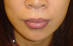 Jawbone/Cheekbone Reduction Before and After Photos NY - After Image 4