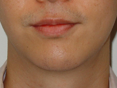 Chin Implant Before and After Photos NYC - After Image 6