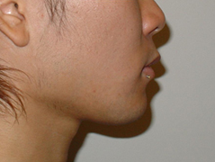 Chin Implant Before and After Photos NYC - After Image 7