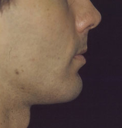 Chin Implant Before and After Photos NYC - After Image 5