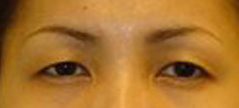 Eyelid Fold Surgery Before and After Photos NY - Before Image 4