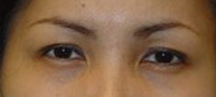 Eyelid Fold Surgery Before and After Photos NY - After Image 4