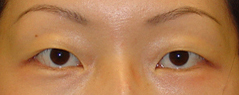 Eyelid Fold Surgery Before and After Photos NY - Before Image 1