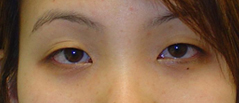 Eyelid Fold Surgery Before and After Photos NY - Before Image 8