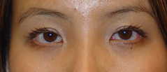 Eyelid Fold Surgery Before and After Photos NY - After Image 8