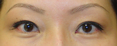 Eyelid Fold Surgery Before and After Photos NY - After Image 1