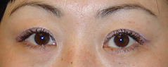 Eyelid Fold Surgery Before and After Photos NY - After Image 2