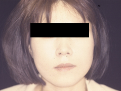 Dr. Edmund Kwan, Edmund Kwan M.D Face Fat Injections After Image 1