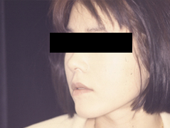 Face Fat Injections Before and After Photos NY - After Image 2