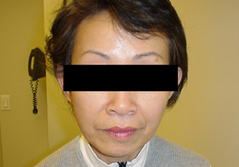 Facelift Before and After Photos NY - After Image 5