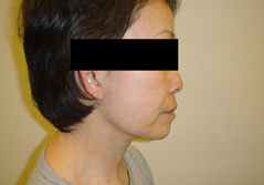 Dr. Edmund Kwan, Edmund Kwan M.D Facelift After Image 6