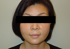 Dr. Edmund Kwan, Edmund Kwan M.D Facelift After Image 7
