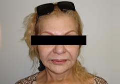 Facelift Before and After Photos NY - After Image 8