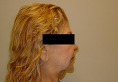 Facelift Before and After Photos NY - Before Image 9