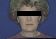Facelift Before and After Photos NY - After Image 10