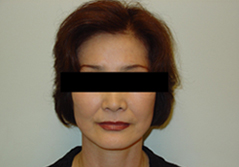 Facelift Before and After Photos NY - After Image 12