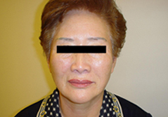 Dr. Edmund Kwan, Edmund Kwan M.D Facelift After Image 3