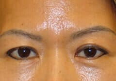 Brow Lift - Before Treatment Image by Dr. Edmund K. Kwan, MD