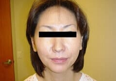 Face Lift - Before Treatment Image by Dr. Edmund K. Kwan, MD